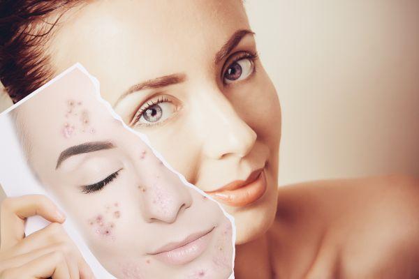 Ev konforunda pratik cilt bakımı: Yüz maskeleri