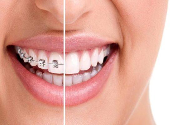 Bozuk diş yapısı depresyona neden oluyor
