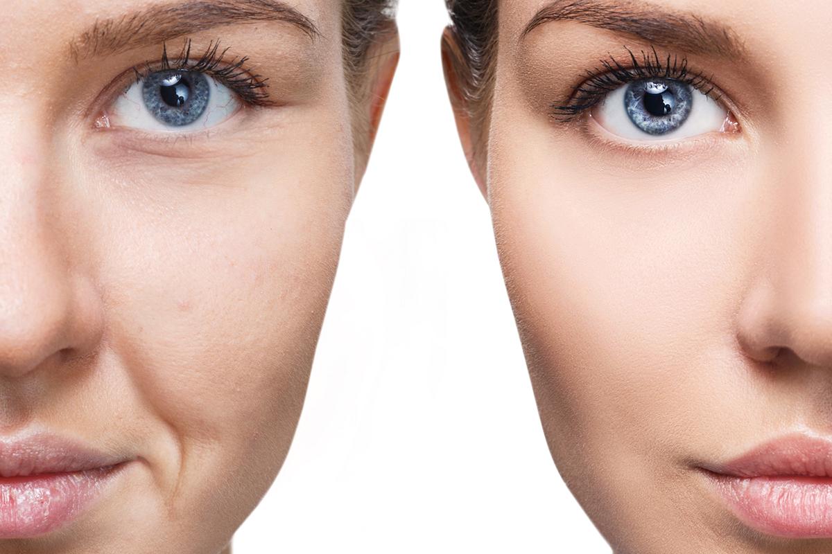 Kışa girmeden cildinizi onarın ve yenileyin!