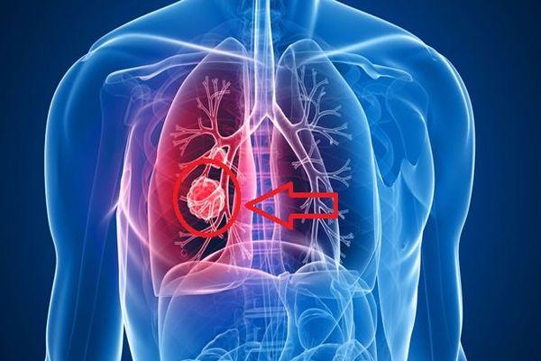 Akciğer kanseri sinsice ilerliyor
