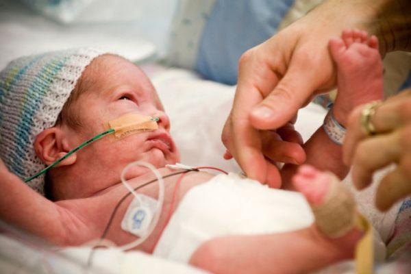 Prematüre bebekler çok özel bakım gerektiriyor